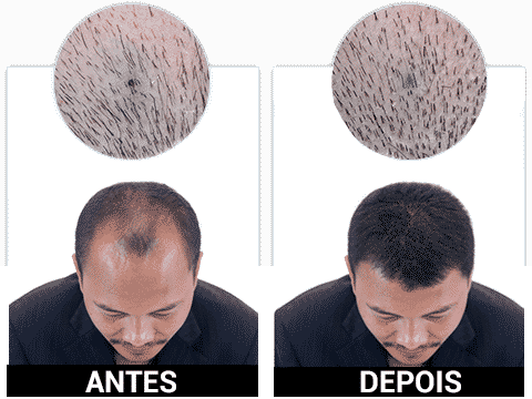 Koruvital Antes e Depois