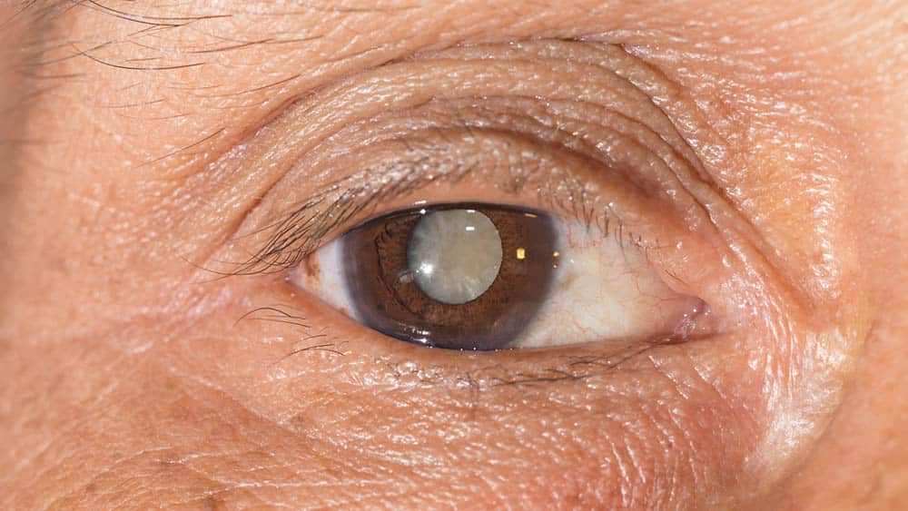 Oculax Benefícios